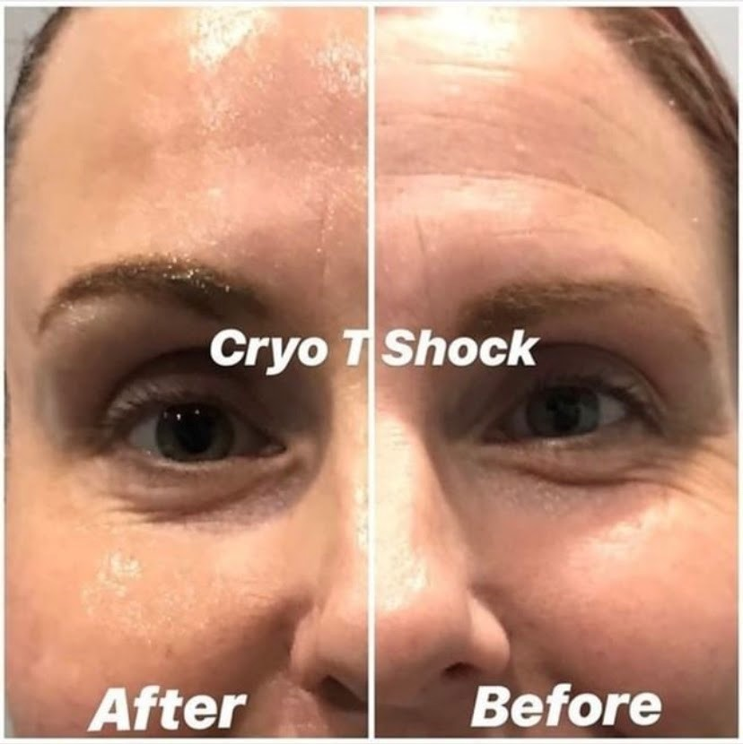 cryo facials are the best